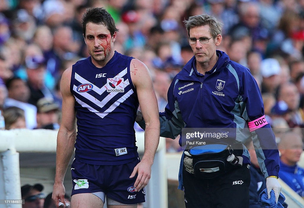 Luke McPharlin of the Dockers leaves the ground under the blood rule during the round 13 AFL match between the Fremantle Dockers and the North Melbourne Kangaroos at Patersons Stadium on June 23, 2013 in Perth, Australia.