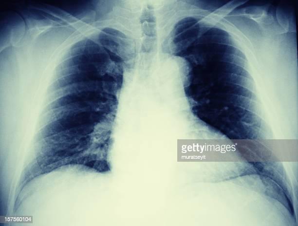 lung x-ray of a pneumonic patien