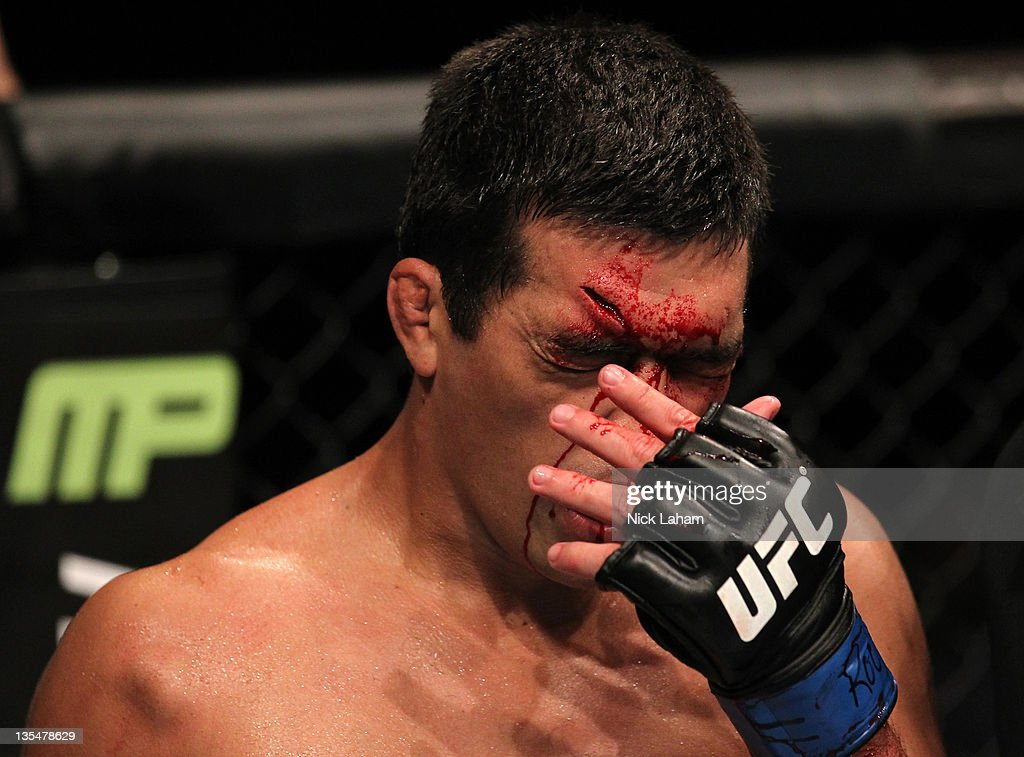 Lyoto Machida wipes blood from his face during his bout against Jon Jones during the UFC 140 event at Air Canada Centre on December 10, 2011 in Toronto, Ontario, Canada.