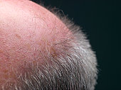 Macro shot of man's bald spot