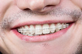 Macro shot of white teeth with braces. Smiling male patient with metal brackets at the dental office
