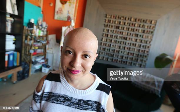 Madeline Urbina 19 before artist Tarquin Singh of Henna Heals applies ornate henna in her studio in Toronto Madeline has alopecia an autoimmune...