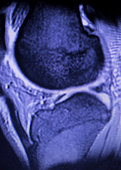 Magnetic resonance imaging MRI knee posterior horn medial meniscus tear scantest results.