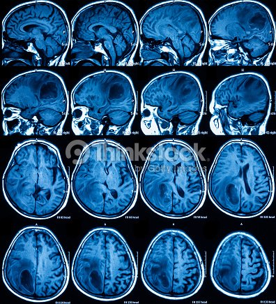Resonancia Magnética Del Cerebro El Tumor Cerebral Foto de stock ...