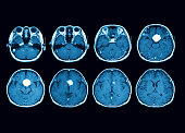 Magnetic resonance imaging (MRI) scan of the brain with gadolinium (GD) contrast medium injections , transverse view, case of pituitary mass