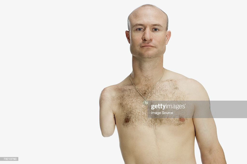 Male amputee : Stock Photo
