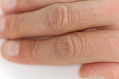 Male hands close up, chapped skin, winter skin care concept