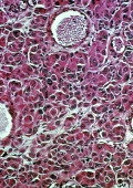 Malignant Melanoma Naevus Optical Microscope X 1000 Histological Cross Section Carryied Out On A Biopsy Of The Tumor