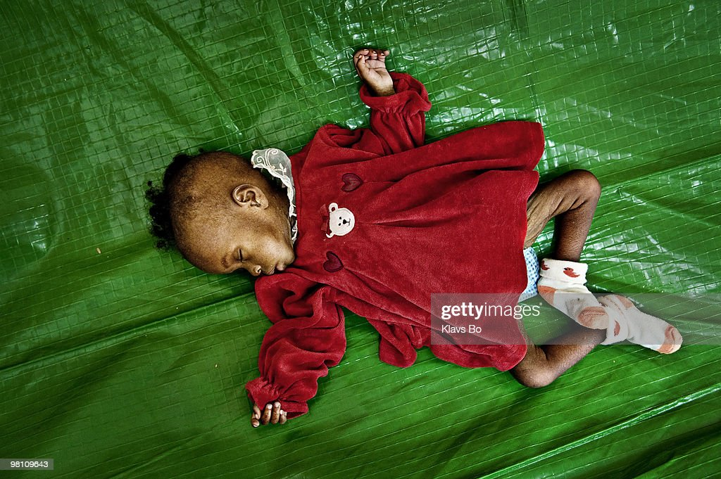 A malnourished child at the hospital set up by Doctors Without Borders. During the first eight months of 2008 Haiti got hit by two tropical storms and two hurricanes leaving more than a million people homeless.