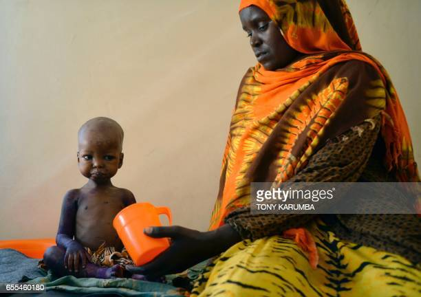 TOPSHOT A malnourished child is fed a special formula by her mother at a regional hospital in Baidoa town the capital of Bay region of southwestern...