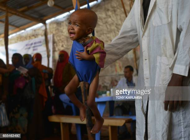 A malnourished child is processed by an aid worker for a UNICEF funded health programme catering to children displaced by drought at a facility in...