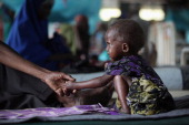 A malnourished refugee child lays in a ward of the Medecins Sans Frontieres Hospital in the Dagahaley refugee camp which makes up part of the giant...