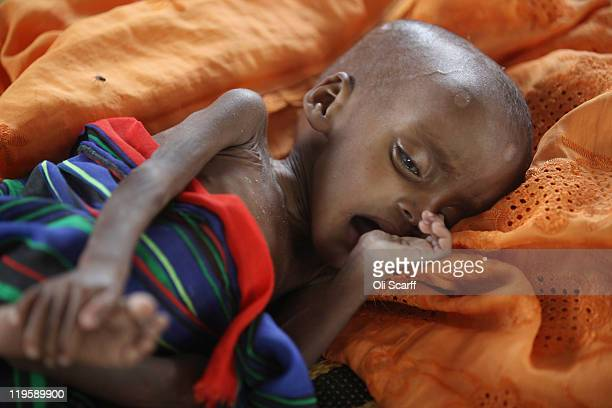 A malnourished refugee child lies in a ward of the Medecins Sans Frontieres Hospital in the Dagahaley refugee camp which makes up part of the giant...