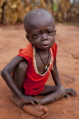A malnourished Sudanese boy waits for his dinner at the Yida refugee camp July 6 2012 in Yida South Sudan Yida refugee camp grows each day and now...