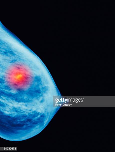 Mammogram showing cancer growth
