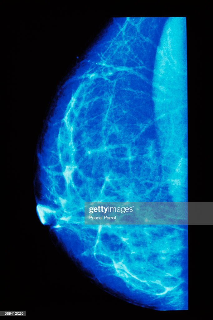 Mammography of a breast