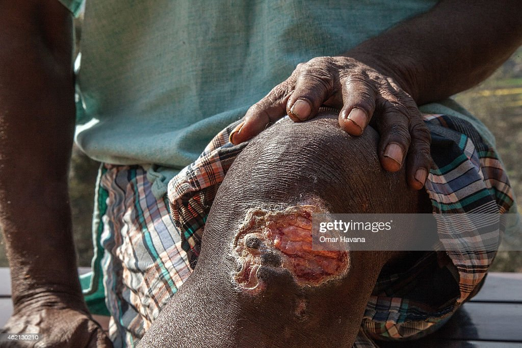 A man affected by leprosy shows an open wound on his knee on January 24 2015 in Kathmandu Nepal Although prevalence of leprosy in Nepal fell to below...