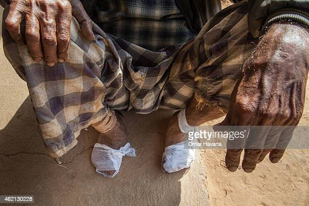A man affected by leprosy sits outside a self care house provided by Leprosy Mission Nepal near the Anandaban Hospital on January 24 2015 in Lele...