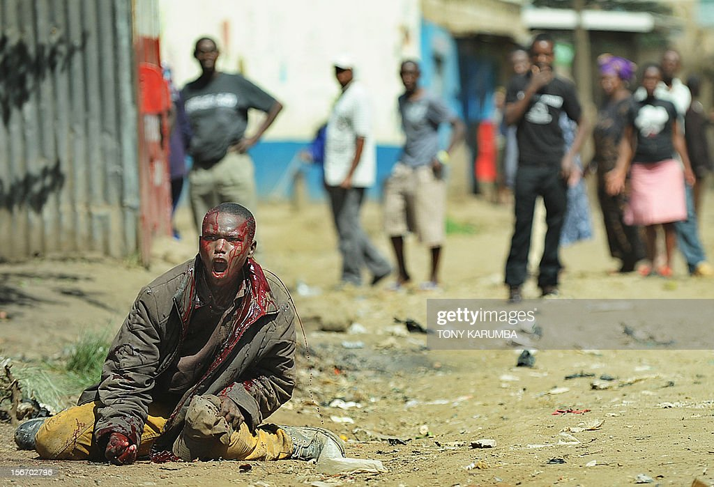 A man bleeds out after he was attacked with machettes by people of Somali ethinicity on November 19, 2012 during inter-ethnic clashes in Nairobi's Eastleigh suburb. Clashes broke out a day after a bomb exploded in a minibus, blamed on sympathisers of Somalia's Al-Qaeda-linked Shebab insurgents, killing seven people and leaving several wounded. A day after the blast, non-Somali Kenyans turned on Somalis and attacked their shops and stalls, accusing them of being responsible for the bomb. No one has claimed responsibility for the blast. AFP PHOTO / Tony KARUMBA