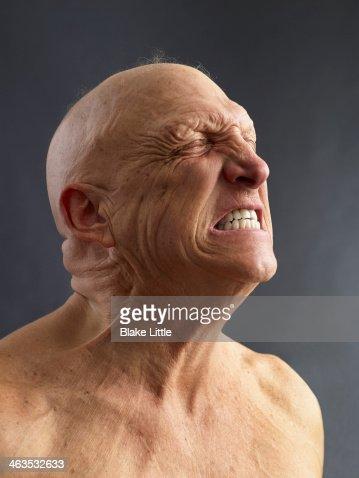 Man Clenching teeth : Foto de stock