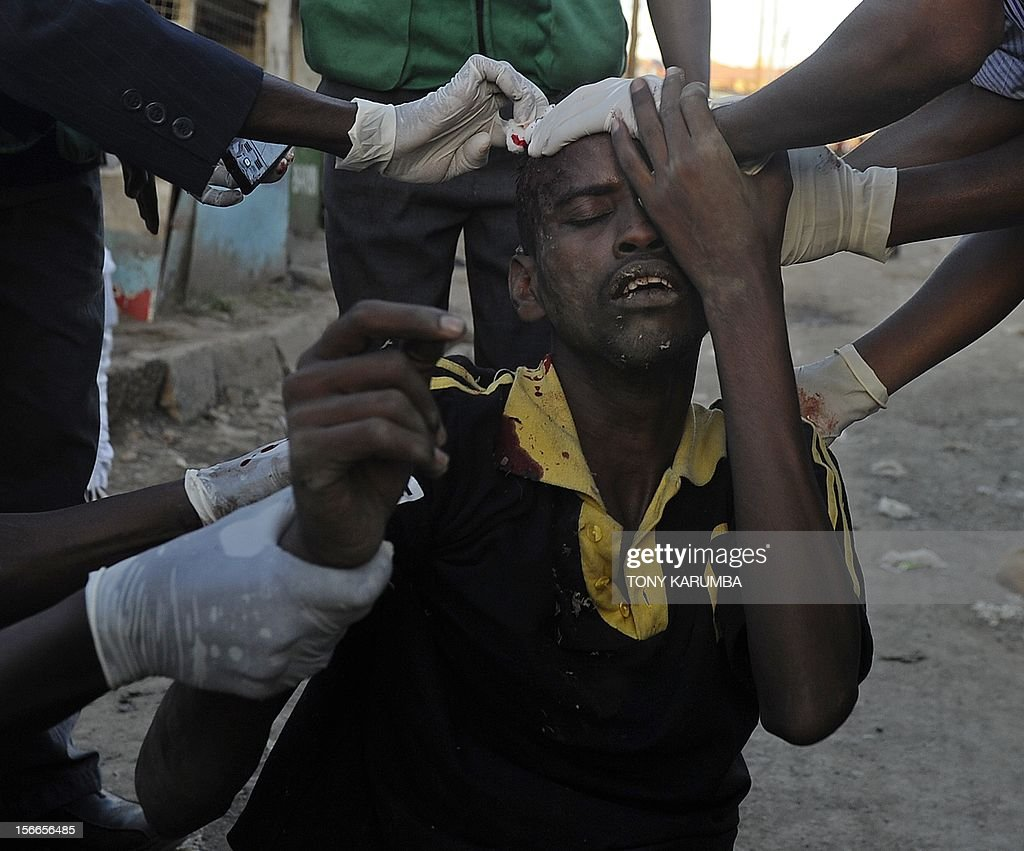 A man from the Somali community is attended to by medics after he was injured when police dispersed large crowds at the scene of a suspected bomb attack on November 18, 2012 in Nairobi's Eastleigh suburb after seven people were killed and many more wounded when an apparent explosive device was hurled at a packed minibus in a predominantly Somali area of the Kenyan capital Nairobi, police and the Red Cross said. Nairobi police chief Moses Nyakwama said the blast occurred on a so-called 'matatu', or local minibus, in the district of Eastleigh, where mainly Somalis or Kenyans of Somali origin live and which has been the target of other attacks in recent weeks. AFP PHOTO/Tony KARUMBA