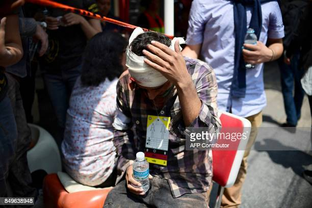 TOPSHOT A man gestures after being injured on the head during a quake in Mexico City on September 19 2017 A powerful earthquake shook Mexico City on...