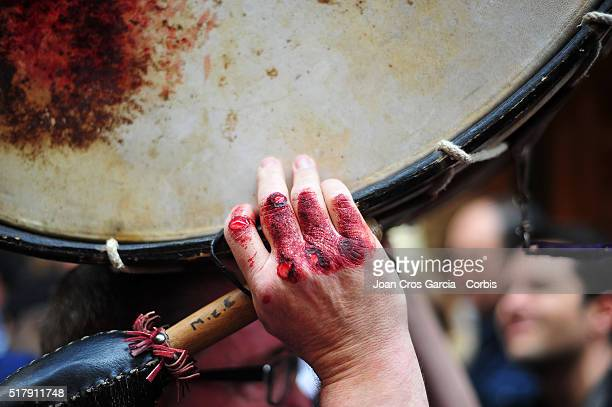 A man hands are bloodied and injured after playing his drum during Holy Week celebrations on March 25 2016 in Calanda Spain