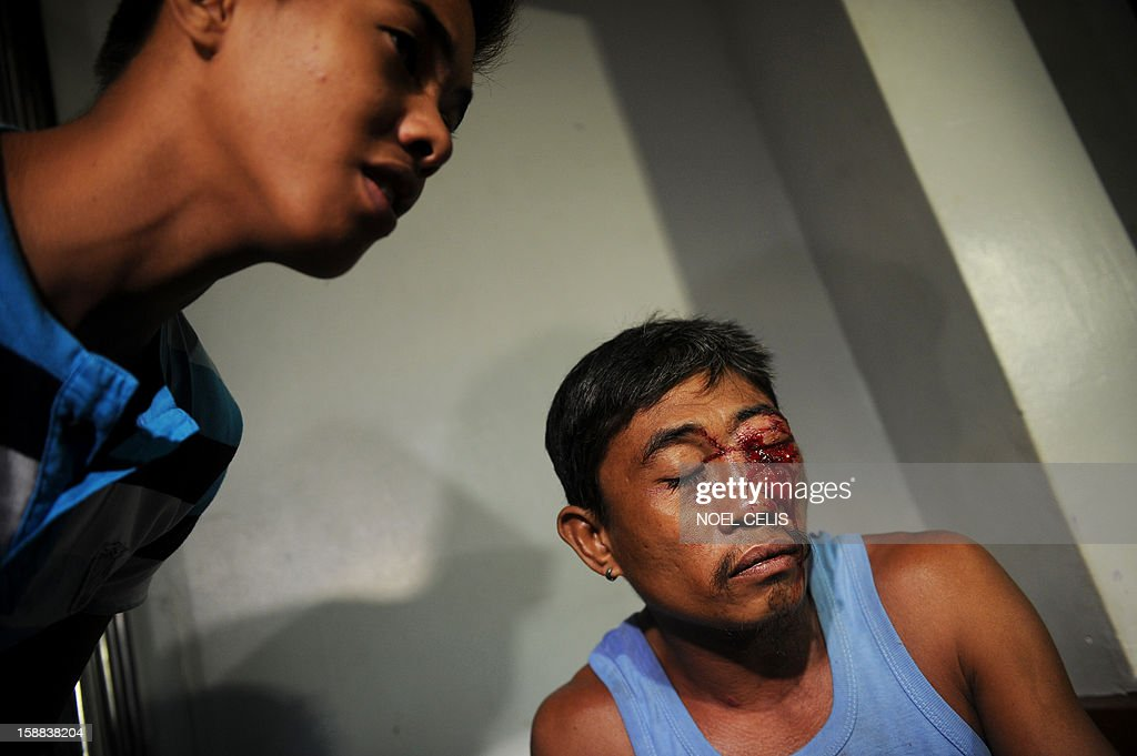 A man injured by a firecracker arrives at the Jose Reyes Memorial Medical Center in Manila early on January 1, 2013, after new year's celebrations. The Philippines is mainly Roman Catholic but the celebrations draw on ancient superstitions and Chinese traditions in which the noise from firecrackers is meant to drive away evil spirits and bring good luck in the coming year. Adding to the danger of annual fireworks celebrations in the streets, there are over 1.2 million unlicensed firearms in the Philippines and some of those are used in the festivities. AFP PHOTO / NOEL CELIS