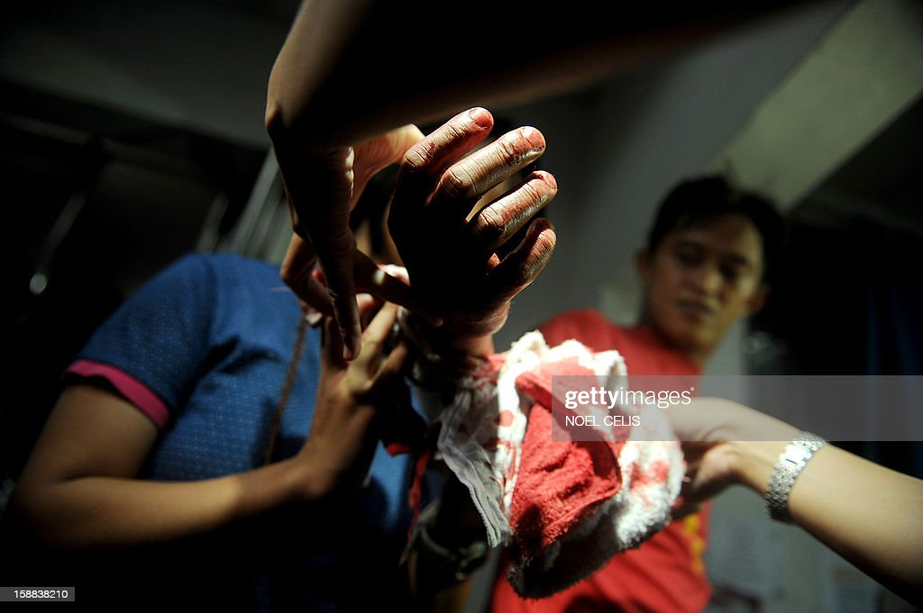 A man injured by a firecracker arrives at the Jose Reyes Memorial Medical Center in Manila early on January 1, 2013, after new year's celebrations. The Philippines is mainly Roman Catholic but the celebrations draw on ancient superstitions and Chinese traditions in which the noise from firecrackers is meant to drive away evil spirits and bring good luck in the coming year. Adding to the danger of annual fireworks celebrations in the streets, there are over 1.2 million unlicensed firearms in the Philippines and some of those are used in the festivities.
