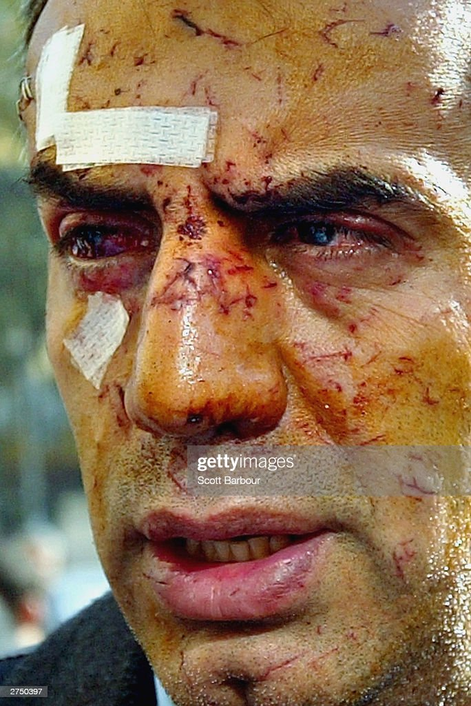A man injured from the bombing revisits the scene of the British Consulate bombing November 21, 2003 in Istanbul, Turkey. Bomb attacks on the British consulate and the HSBC bank headquarters have killed at least 27 people and left hundreds injured.