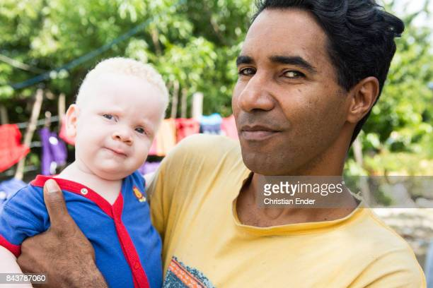 Santa Domingo Dominican Republic November 30 2012 A man is holding up a albino toddler probably his son in the poor neighbourhood 'Los Alcarrizos' in...
