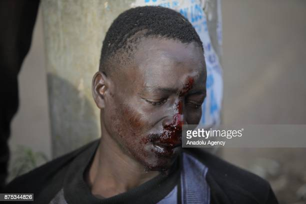 A man is injured as supporters of political opposition leader Raila Odinga who are trying to gather near the country's main airport and Uhuru park to...