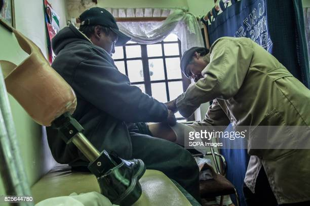 A man is testing the exact measurement of the healthy leg to perfectly accommodate the new prosthesis Bolivian farmers walk again with the help of...