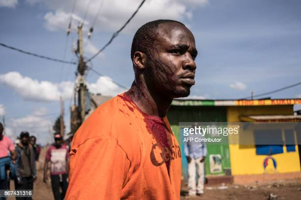A man looks on after being injured at the head by a stone when a mob attempted to break down the door of a shop in Kawangware on October 28 as...