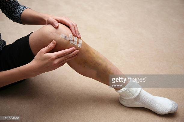 Man massaging area around sutures of a knee injury