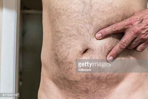 hernia near belly button in adults