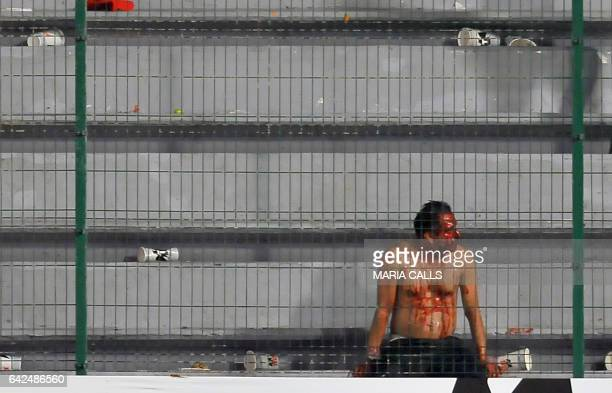 A man sits in the field hurt after a fight between fans of Veracruz and fans of Tigres during their Mexican Clausura 2017 Tournament football match...