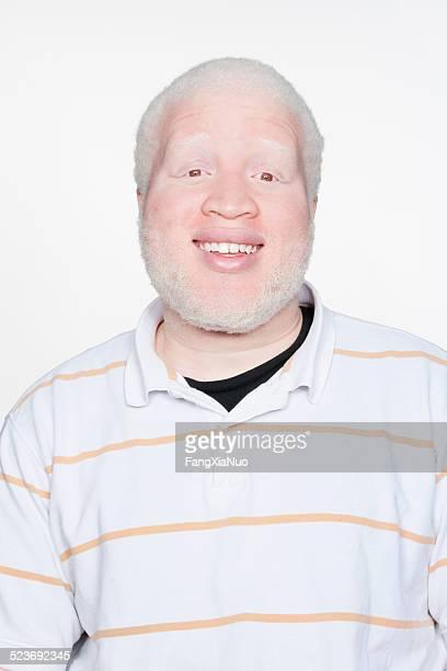 Homem a sorrir para a câmara