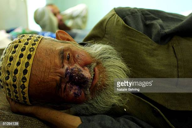 Man Suffering From Cutaneous Leishmaniasis A Disfiguring And Disabling Skin Disease Lies In A Hospital Bed After Receiving An Injection May 8 2002 In...