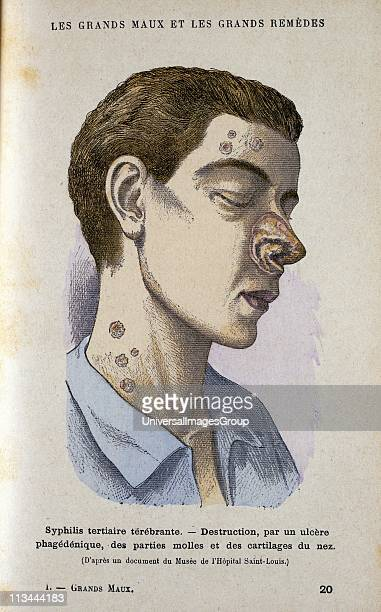 Man suffering from tertiary Syphilis From Jules Rengade Le Grands Maux et les Grands Remedes Paris c1890
