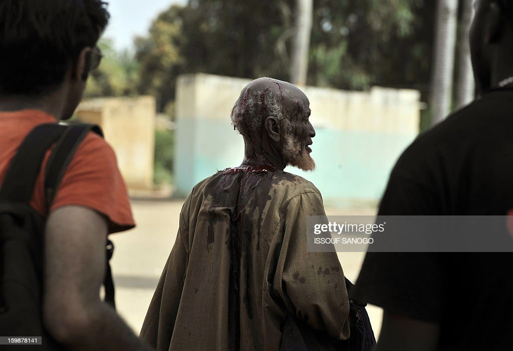 A man suspected of allegedly collaborating with Islamists is left bleeding after having been beaten, in the city of Diabaly, on January 22, 2013. The EU executive today announced 20 million euros of extra humanitarian aid to help tens of thousands of Malians fleeing fighting in the nation's north and centre, its second such donation in as many months.