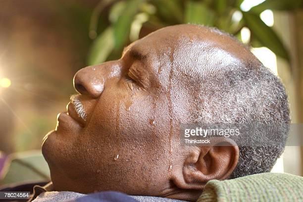 Man sweating as result of diabetes