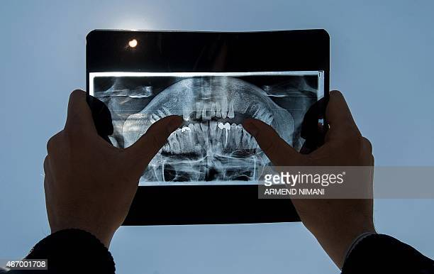 A man uses a dental Xray to watch a partial solar eclipse in Pristina on March 20 2015 AFP PHOTO / ARMEND NIMANI