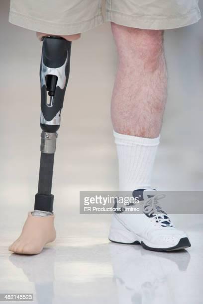 Man wearing prosthetic leg