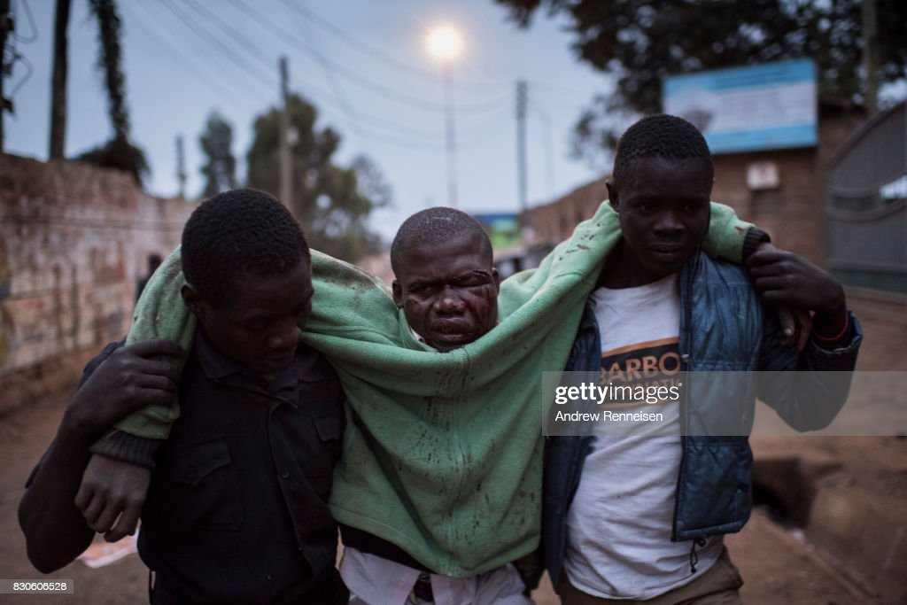 A man who was badly beaten is carried in the Kibera slum on August 12, 2017 in Nairobi, Kenya. Police clashed with opposition supporters overnight as Uhuru Kenyatta was announced as president for his second term.