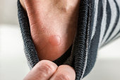 Man with a fluid blister on his heel from the rubbing and friction caused by ill fitting shoes pulling down his sock to display it to the camera.