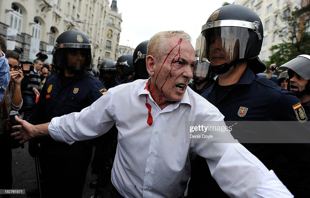 A man with a head wound tries to calm the crowd of protestors during a demonstration surrounding the Spanish parliament to protest against spending cuts and the government of Mariano Rajoy on September 25, 2012 in Madrid, Spain. Demonstrators from various organizations, demanding a new constitutional process, are marching today from three different locations in the center of Madrid to the lower house in the Spanish patliament.