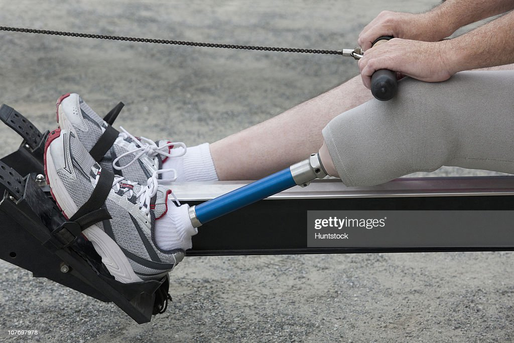 Man with a prosthetic leg exercising on rowing machine