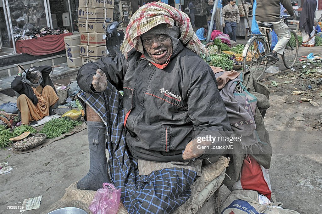 CONTENT] man with advanced leprosy sits on his wagon posing for camera hands have no digits wears a sock to cover his amputated foot Near the ghats...