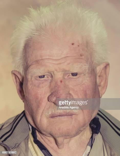 A man with albinism Bekir Gokgul poses for a photo in Ankara Turkey on October 10 2016 Albinos a rare group of genetic disorders that results in the...